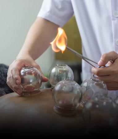 حجامت درمانی Cupping Therapy