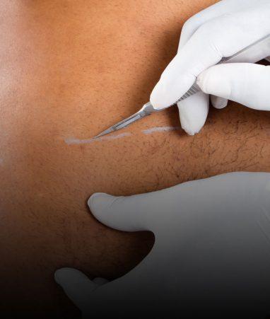 فصد درمانی venesection