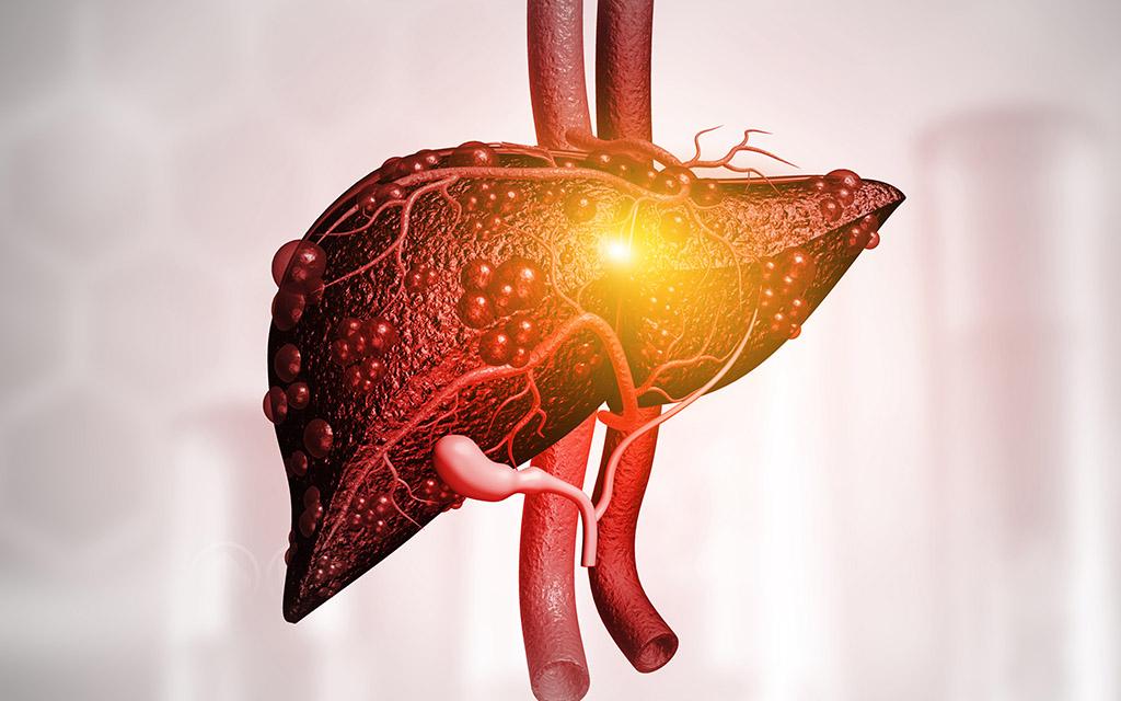 fatty liver Treatment درمان کبد چرب