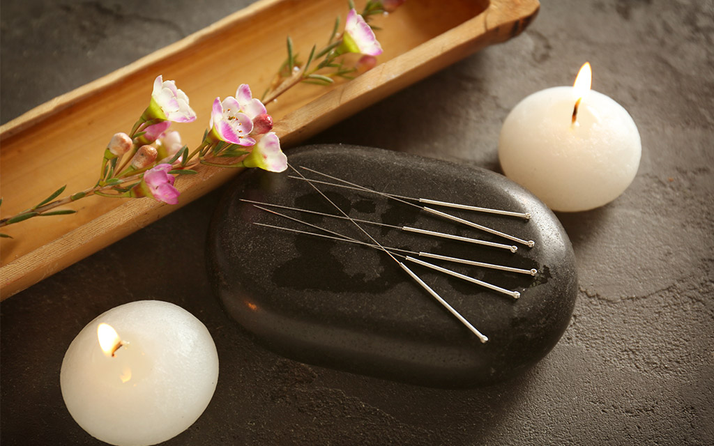 acupuncture importance traditional treatment اهمیت طب سوزنی