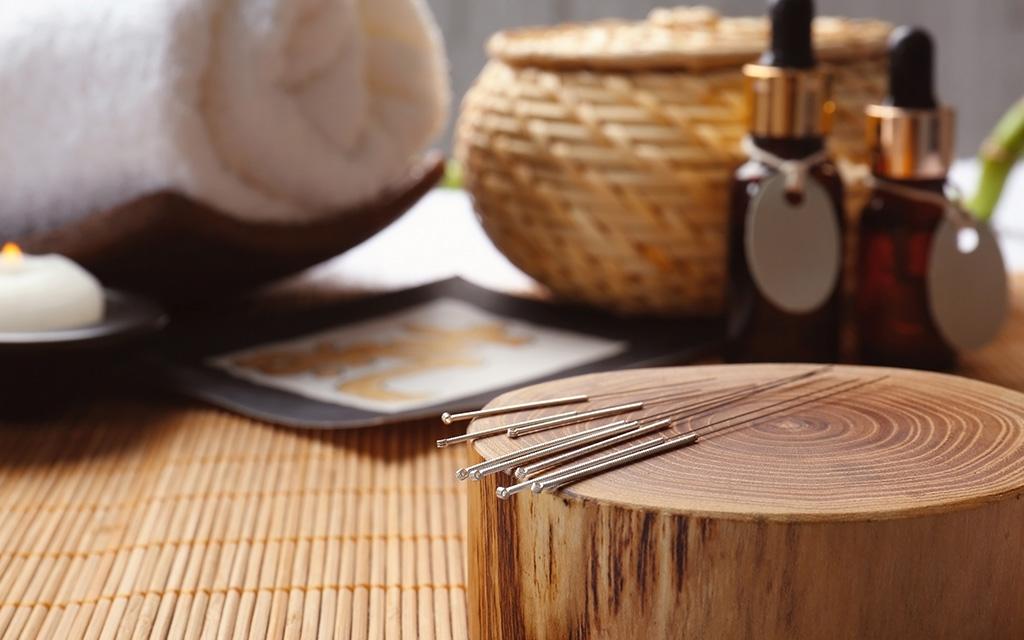 lose weight acupuncture کاهش وزن طب سوزنی
