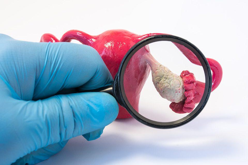 ovarian cysts treatment درمان کیست تخمدان با طب سنتی