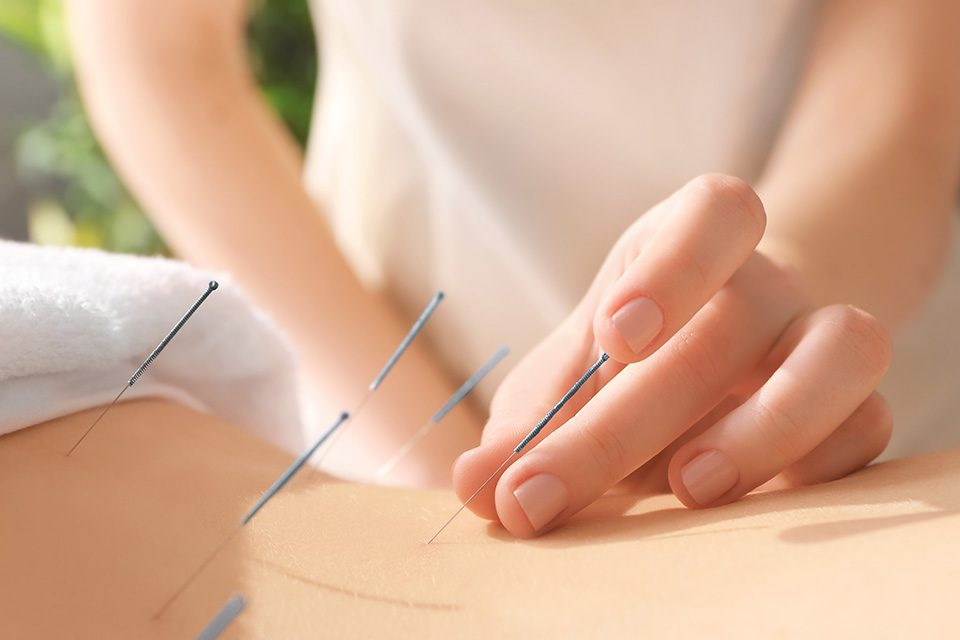 Treatment of infertility with acupuncture درمان نازایی با طب سوزنی