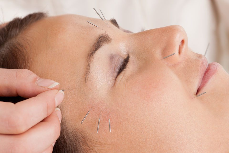 Facial beauty and skin rejuvenation with acupuncture زیبایی صورت و جوانسازی پوست با طب سوزنی