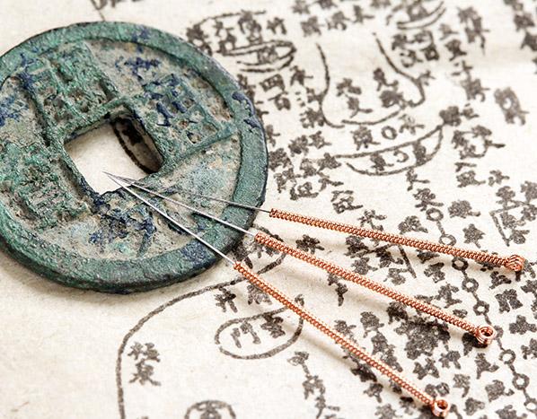 acupuncture history تاریخچه طب سوزنی