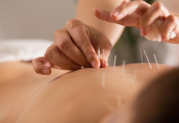 acupuncture treatment درمان طب سوزنی