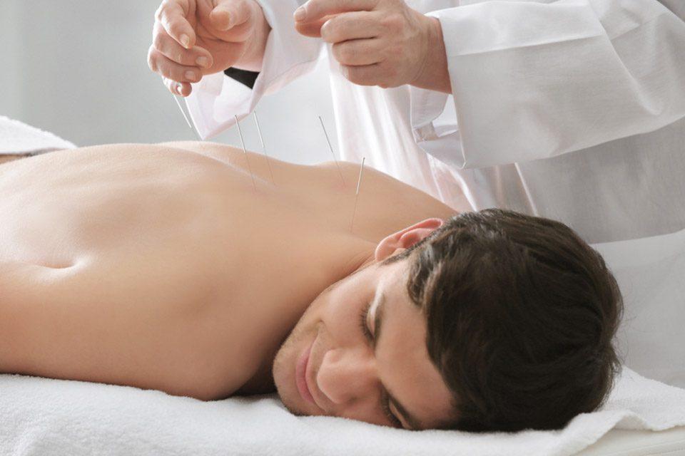 best acupuncture doctor بهترین دکتر طب سوزنی